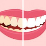 Teeth Whitening FAQs Answered